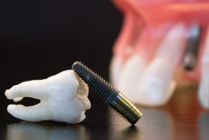 dental implant and tooth