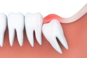 Model of patient needing wisdom tooth removal.